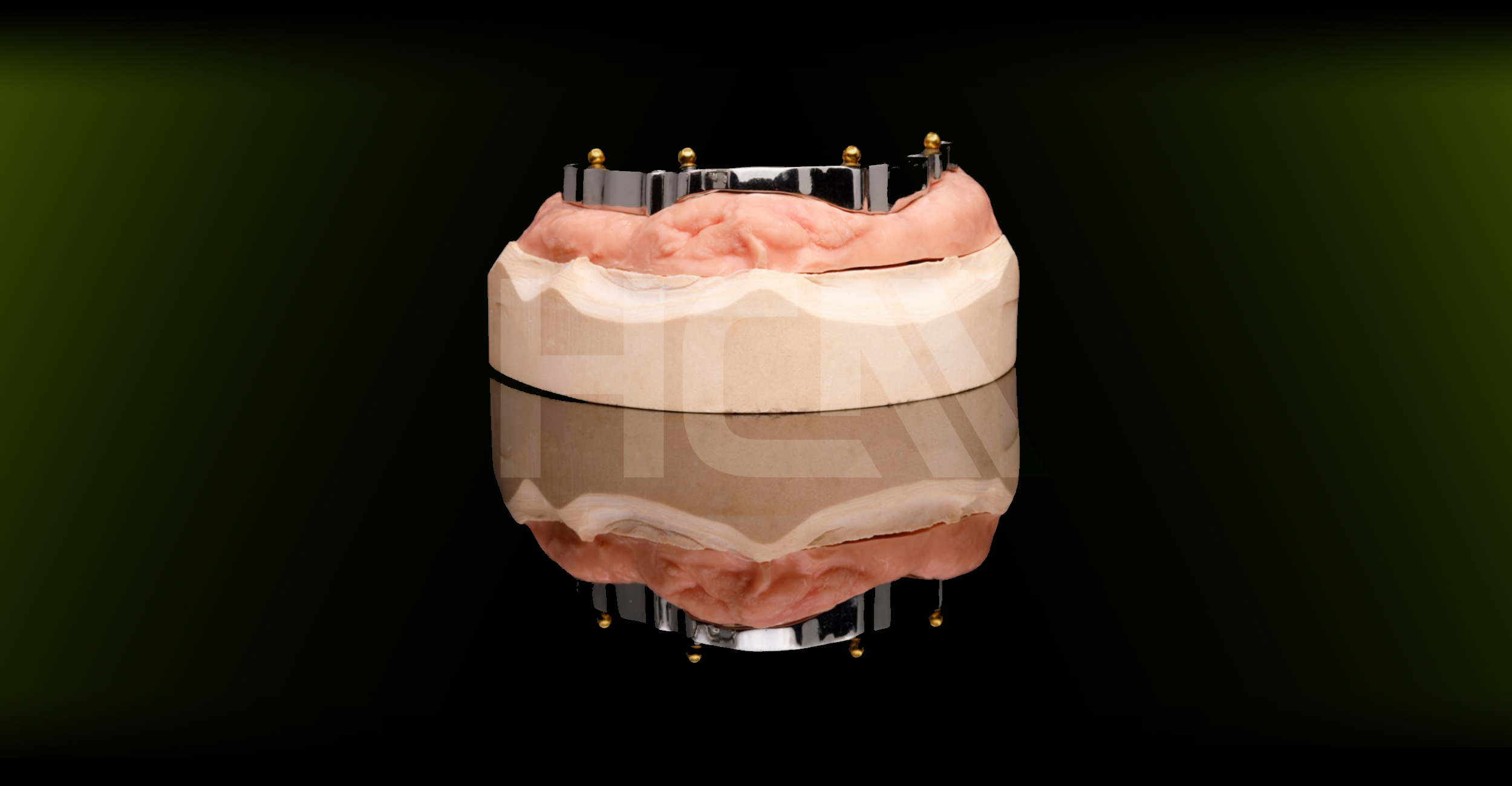 Bara pe implanturi